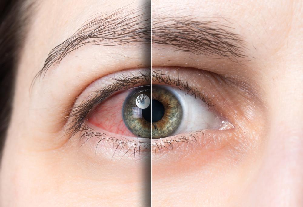 Zarudlé oko při syndromu suchého oka